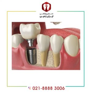 نصب روکش ایمپلنت دندان به چه شکلی انجام می شود؟