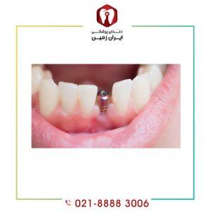 ایمپلنت دندان جلو فک پایین چگونه انجام می شود؟