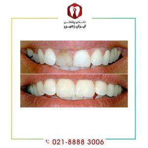 لمینت دندان عصب کشی شده امکان پذیر است؟
