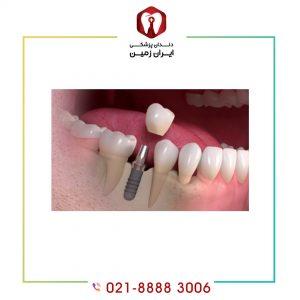 روکش موقت ایمپلنت دندان چیست و به چه دلیل نصب می شود؟