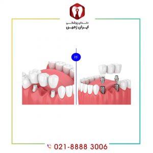 تفاوت ایمپلنت دندان و بریج دندان چیست و کدام بهتر است؟
