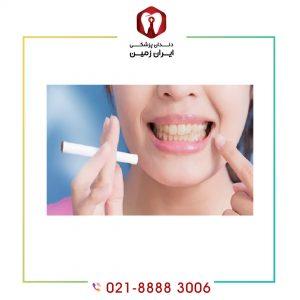 تأثیر سیگار بر ایمپلنت دندان چیست و چر نباید در طی درمان سیگار مصرف نمود؟