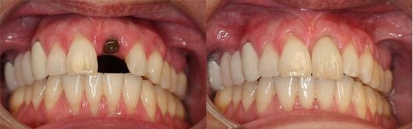 قیمت روکش ایمپلنت دندان - کلینیک ایران زمین