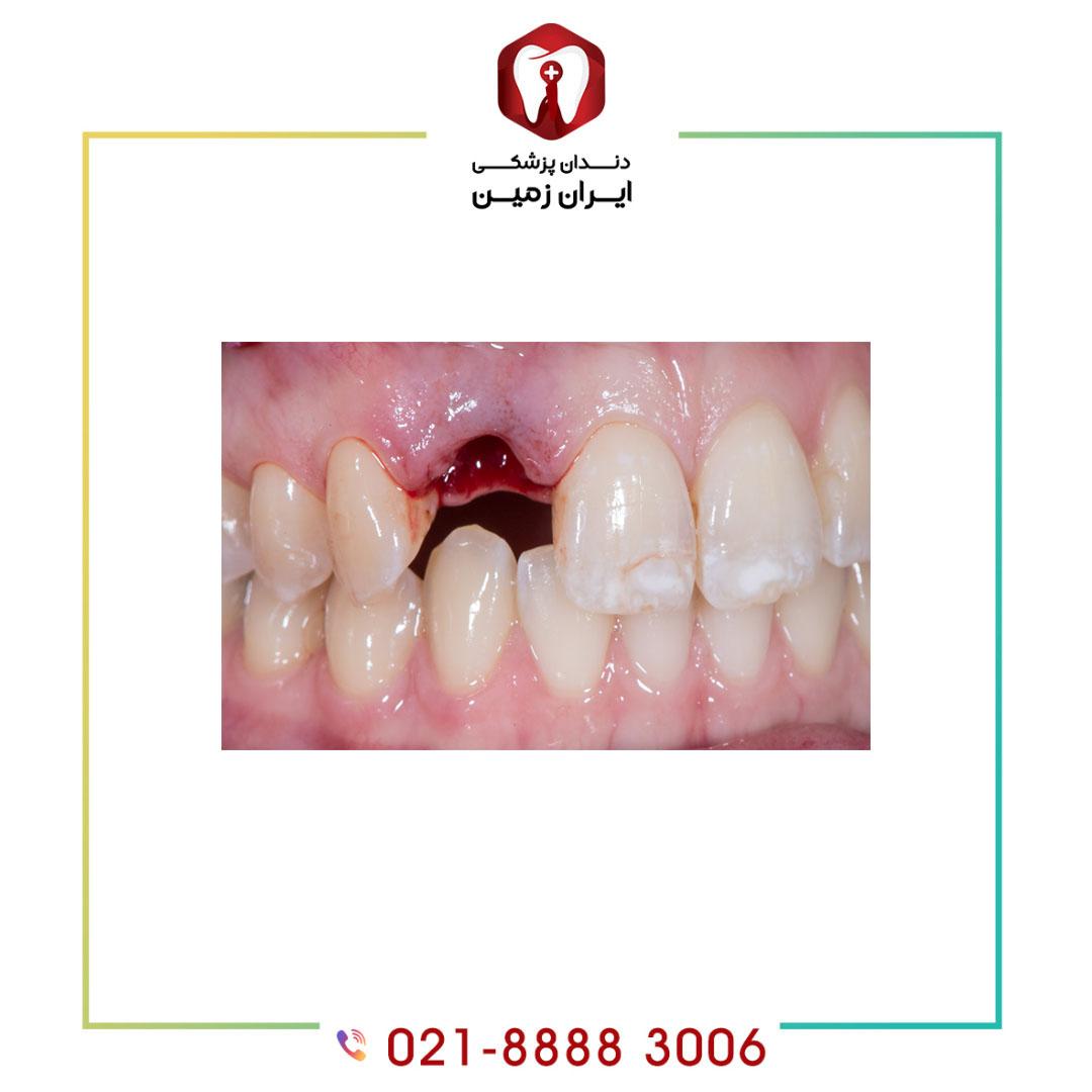 ترمیم ایمپلنت دندان چرا و چگونه انجام می شود؟