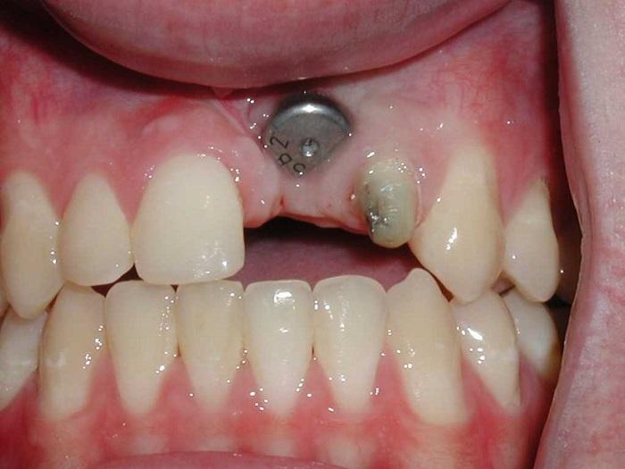 علائم جوش نخوردن ایمپلنت دندان - کلینیک ایران زمین