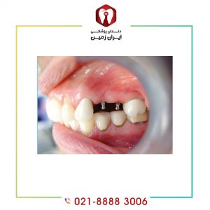 هر آنچه در مورد ایمپلنت دندان باید بدانید