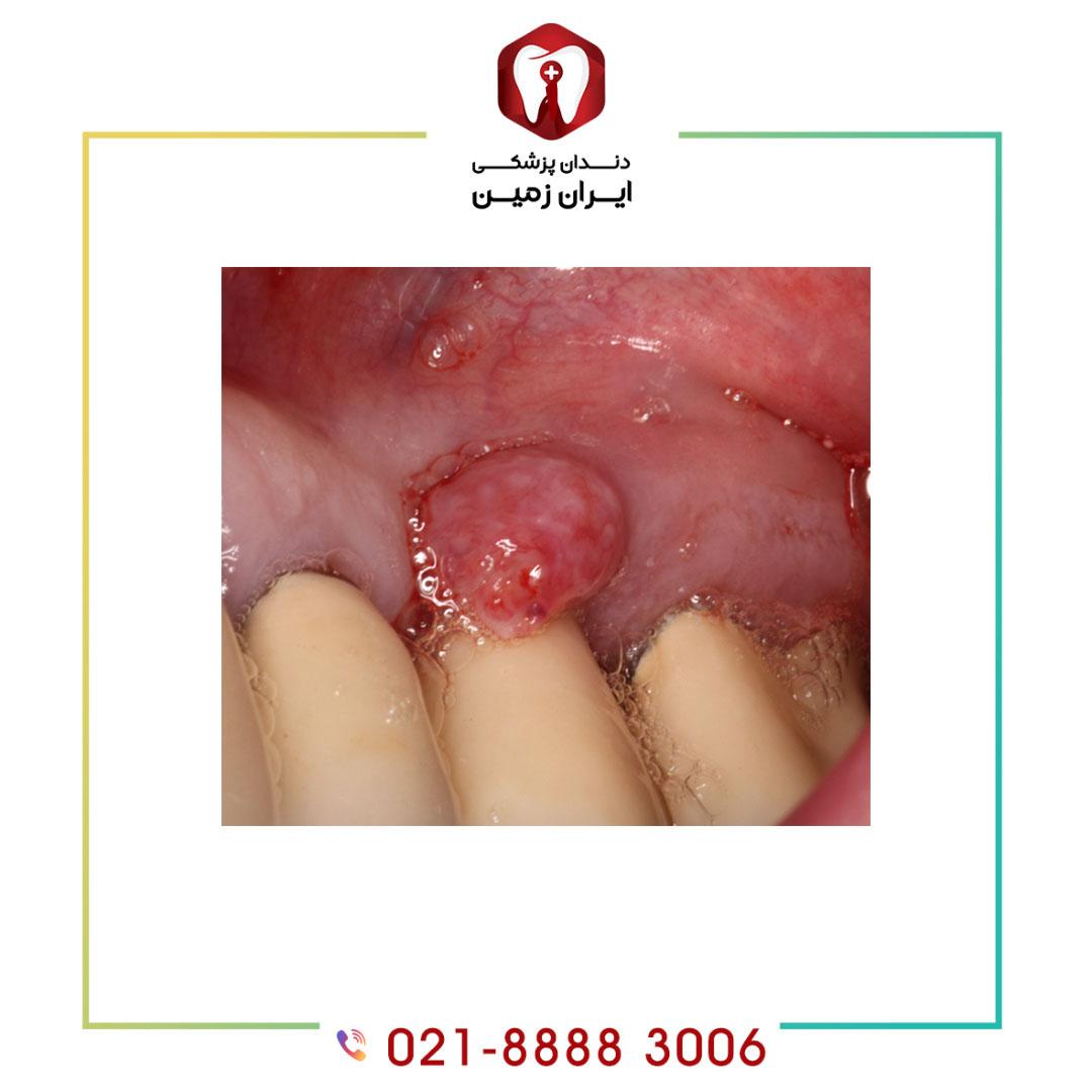 علت آبسه دندان بعد از ایمپلنت دندان چیست و چگونه باید آن را کنترل نمود؟