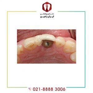 علت باز شدن پیچ ایمپلنت دندان چیست و این مشکل چگونه رفع می شود؟