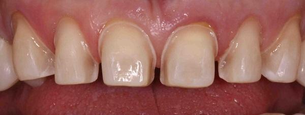 عوارض تراشیدن دندان - کلینیک ایران زمین