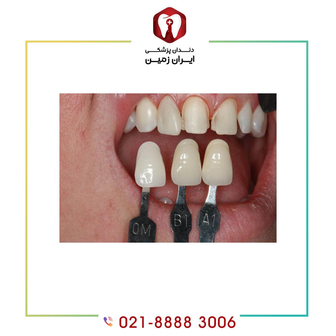 عوارض تراشیدن دندان چیست؟ چه روش زیبا سازی نیاز به تراش دندان ندارد؟