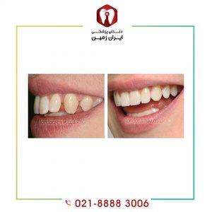کامپوزیت دندان فاصله دار به چه صورت انجام می شود؟