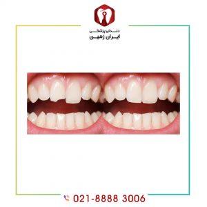 کامپوزیت دندان شکسته امکانپذیر است؟