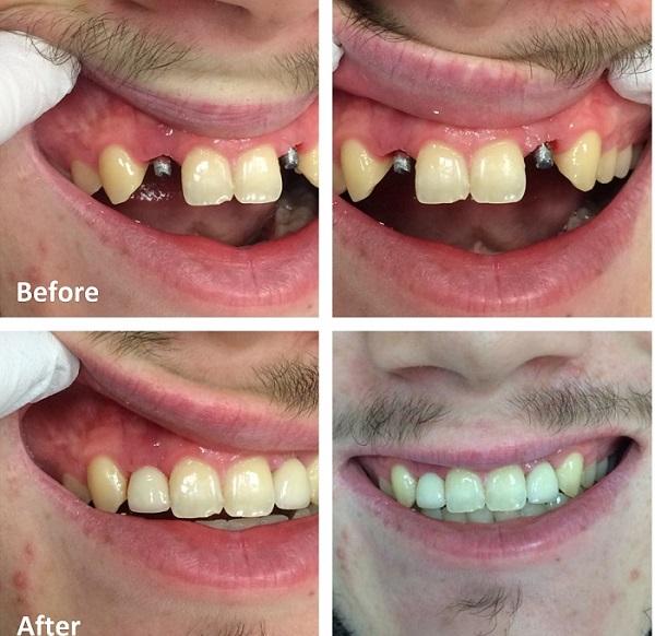 شرایط ایمپلنت دندان - کلینیک ایران زمین