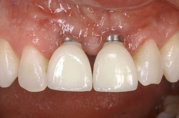 درمان پس زدن ایمپلنت دندان -  کلینیک ایران زمین