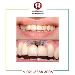 درمان پس زدن ایمپلنت دندان چیست؟