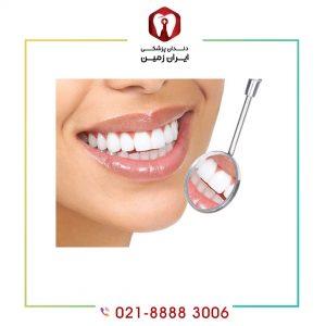مراقبت از لمینت دندان به چه شکلی انجام می شود؟