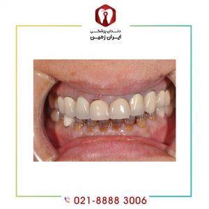 افتادن کامپوزیت دندان به چه دلایلی اتفاق می افتد؟