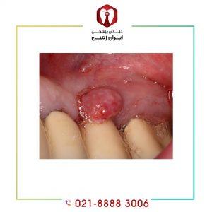 تب و لرز بعد از ایمپلنت دندان به چه دلیل اتفاق می افتد؟