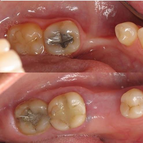 چه مدت بعد از کشیدن دندان باید ایمپلنت کرد - کلینیک ایران زمین
