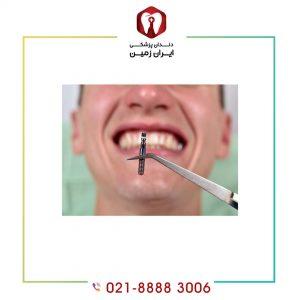 چه مدت بعد از کشیدن دندان باید ایمپلنت کرد ؟
