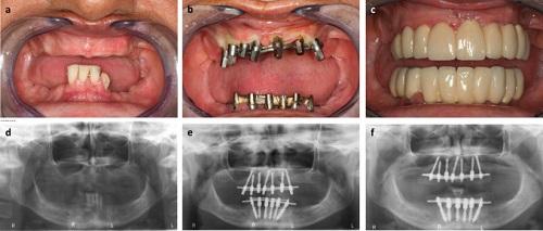 چطور بفهمیم ایمپلنت دندان جوش خورده است - کلینیک ایران زمین