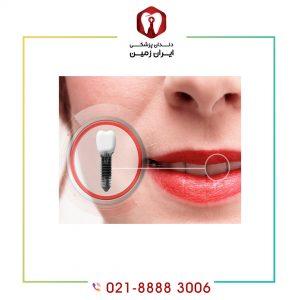 چطور بفهمیم ایمپلنت دندان جوش خورده است؟