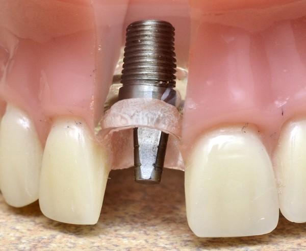 Removal of dental implant veneer - Iran Zamin Clinic