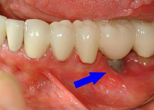 خطرات ایمپلنت دندان - کلینیک ایران زمین