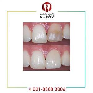 کامپوزیت دندان پوسیده امکان پذیر است؟