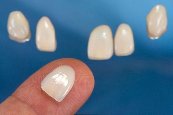 بهترین نوع لمینت دندان
