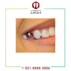 سخت ترین مرحله ایمپلنت دندان کدام مرحله است؟