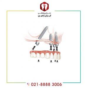 کج شدن ایمپلنت دندان به چه دلیل اتفاق می افتد؟