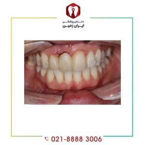 روش خارج کردن ایمپلنت دندان ناموفق به چه شکلی انجام می شود؟