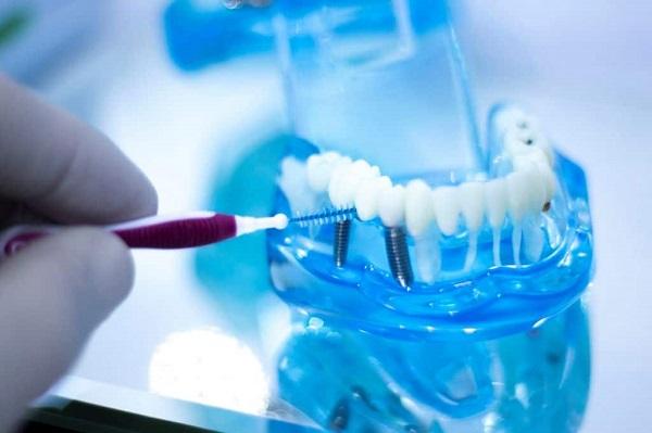 10 نکته کلیدی قبل از انجام ایمپلنت دندان