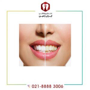 قبل از لمینت دندان چه اقداماتی باید انجام داد؟