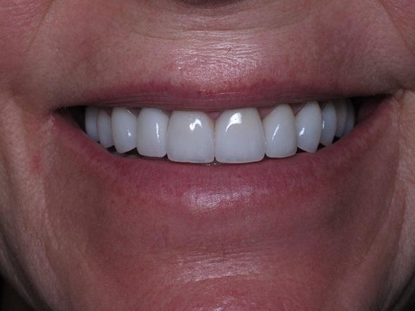 رنگ کامپوزیت ونیر دندان - کلینیک ایران زمین