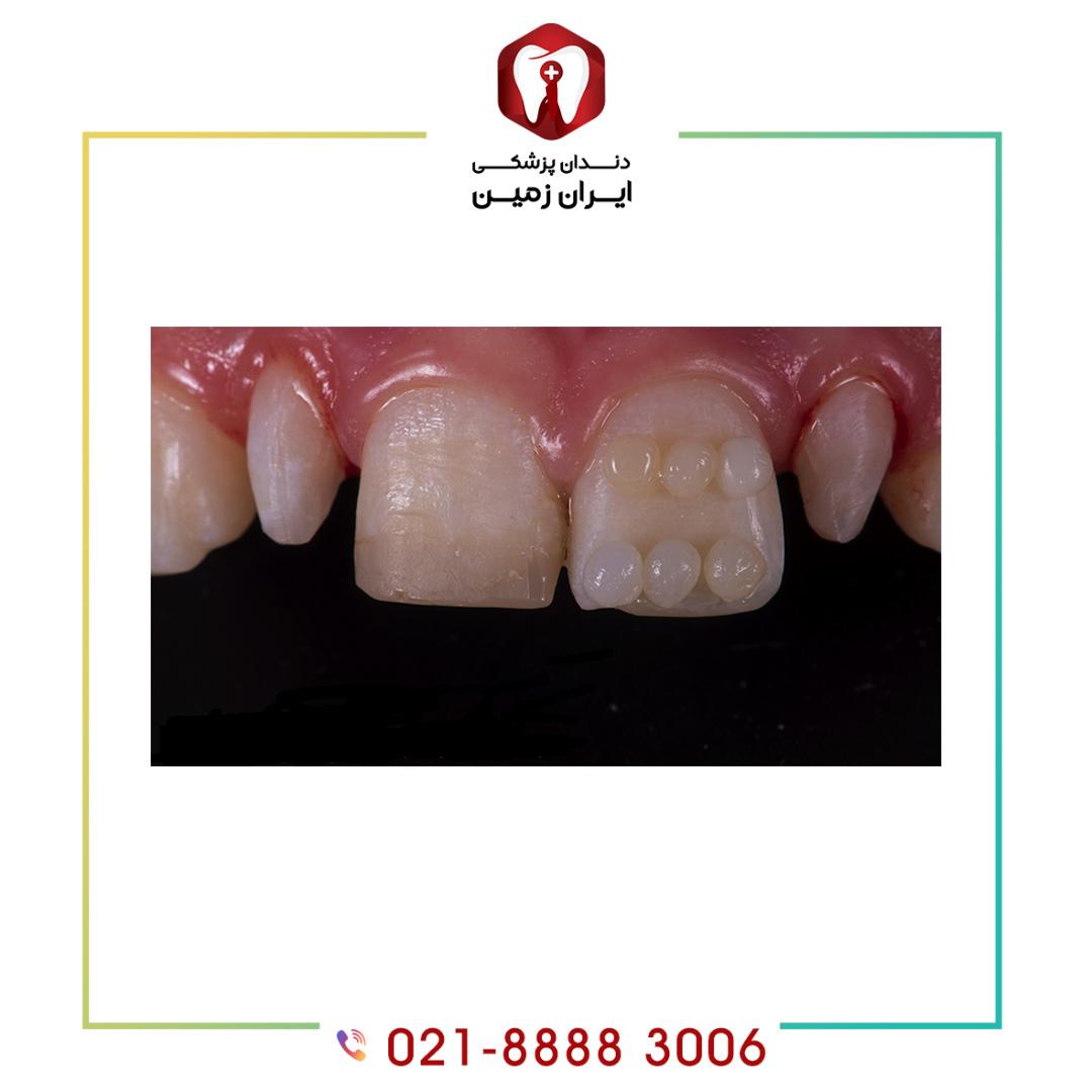 رنگ کامپوزیت دندان چگونه باید انتخاب شود؟