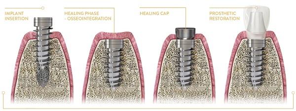 ایمپلنت دندان چند مرحله دارد - کلینیک ایران زمین