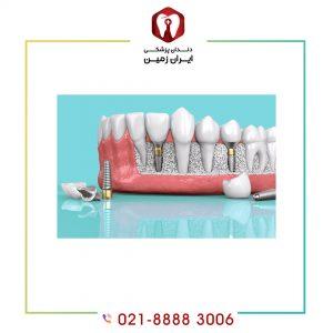 ایمپلنت دندان چند مرحله دارد ؟