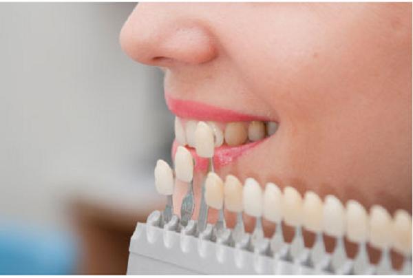 لمینت دندان تغییر رنگ داده - کلینیک ایران زمین