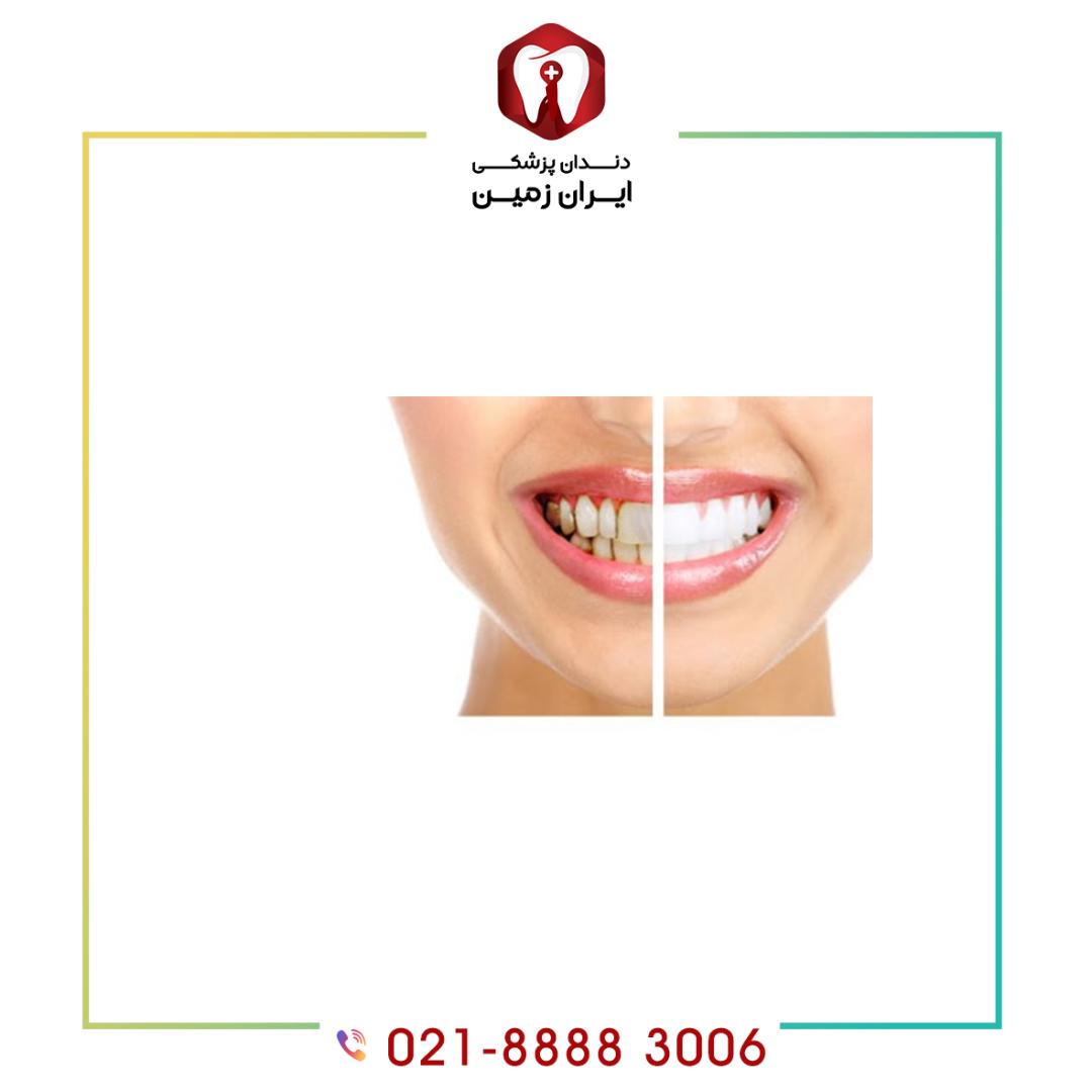لمینت دندان تغییر رنگ داده در زیبایی صورت شما تاثیر بسزایی خواهد داشت