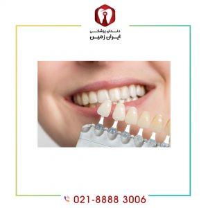 رنگ لمینت دندان را با توجه به چه عواملی باید انتخاب کرد؟