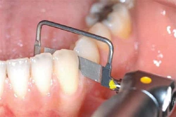 لمینت دندان چند جلسه زمان نیاز دارد - کلینیک ایران زمین