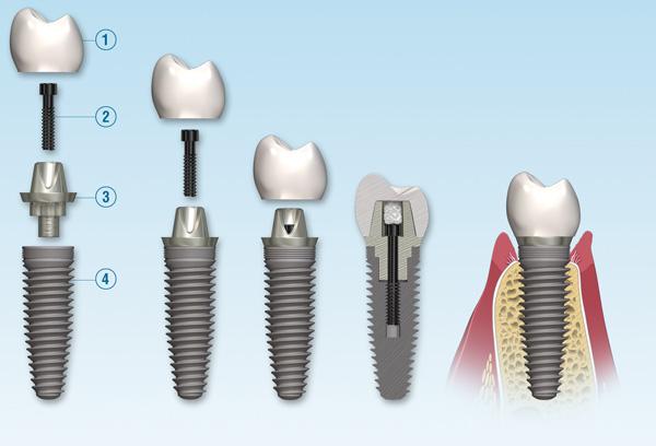 قسمت های مختلف ایمپلنت دندان - کلینیک ایران زمین