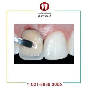 معایب کامپوزیت دندان چه زمانی به سراغ ما می آیند؟