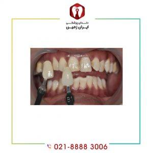 کامپوزیت دندان نا مرتب آنها زیبا و مرتب می نماید