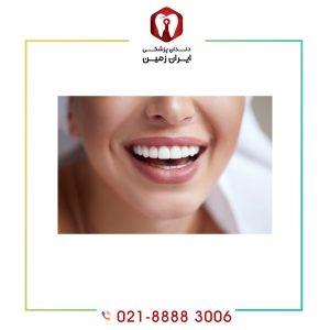 ماندگاری کامپوزیت دندان تحت تاثیر چه عواملی است؟
