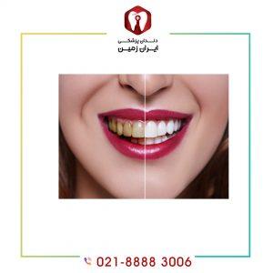 ماندگاری لمینت دندان تا چه زمانی است؟ چگونه می توان آن را افزایش داد؟