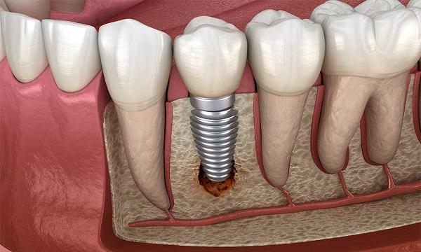 عوامل موثر در قیمت ایمپلنت دندان