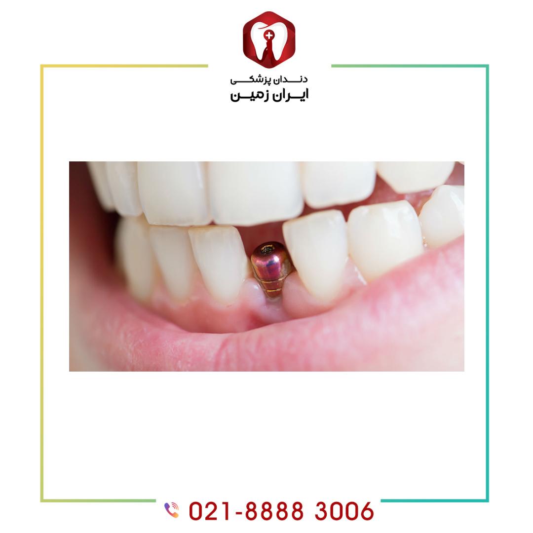 عوامل موثر در قیمت ایمپلنت دندان چه مواردی را شامل می شود؟